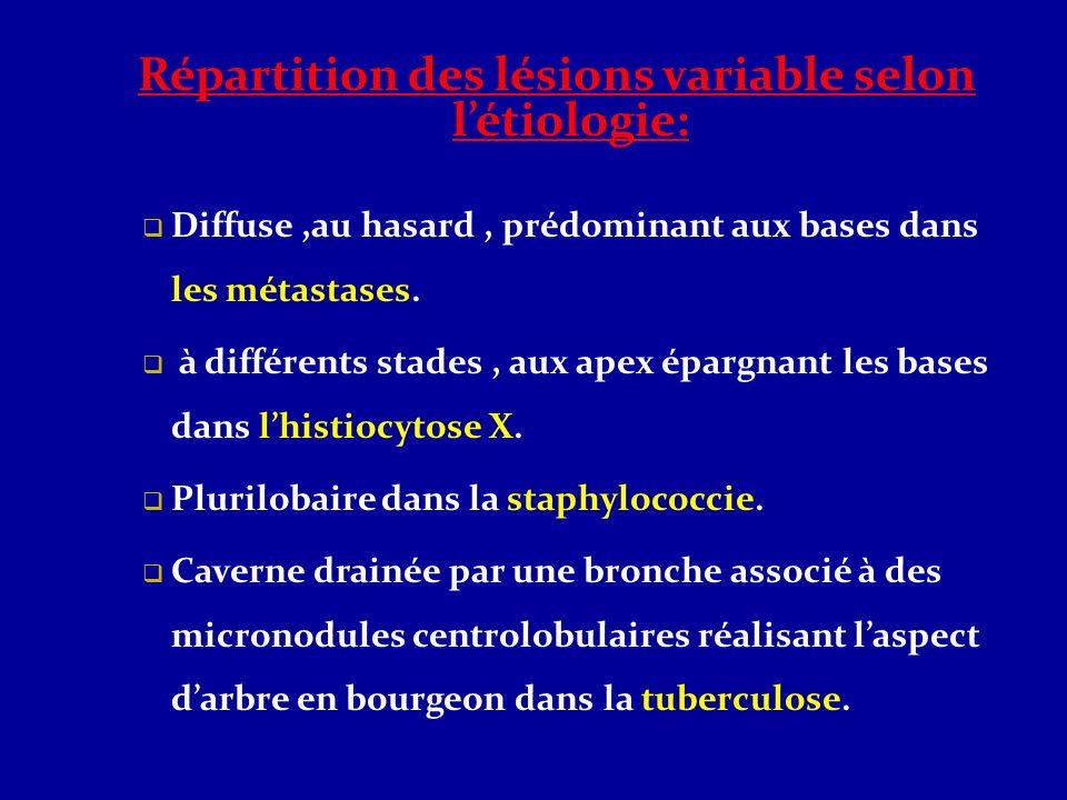 Répartition des lésions variable selon létiologie: Diffuse,au hasard, prédominant aux bases dans les métastases. à différents stades, aux apex épargna