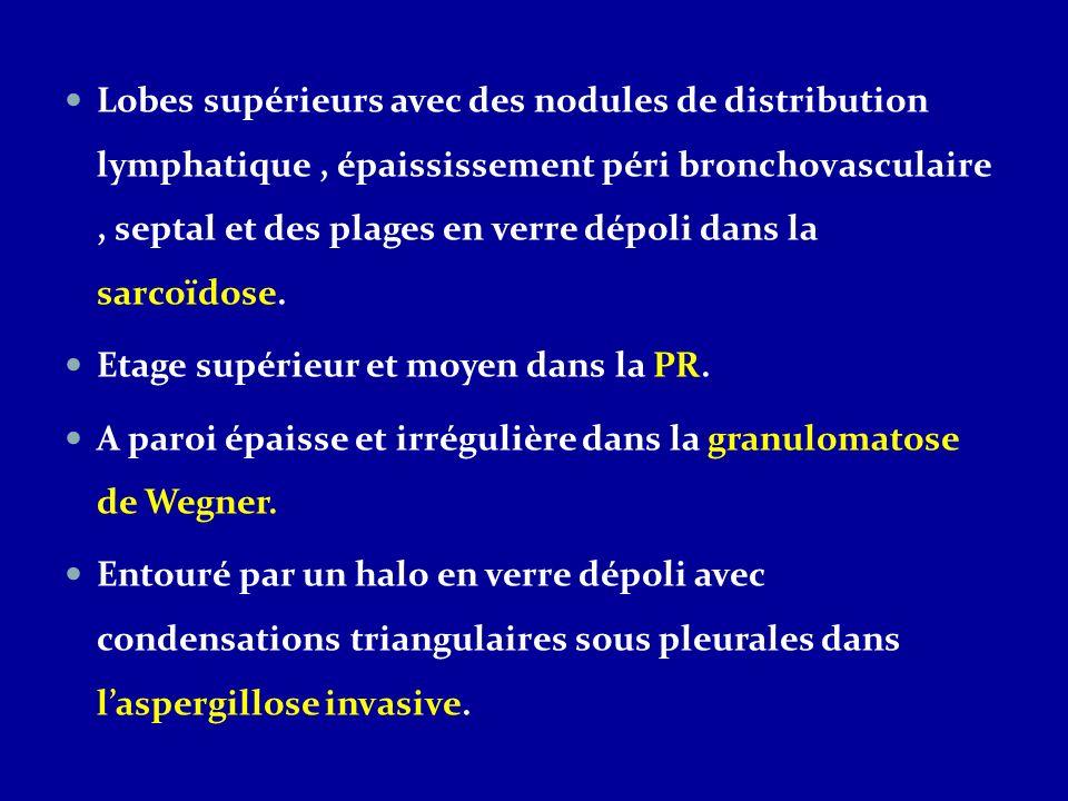 Etiologies de nodules pulmonaires excavés multiples Infectieux: Tuberculose Aspergillose Staphylococcie Néoplasique: Métastases de cancers ORL chez lhomme et gynécologique chez la femme Inflammatoire: Vascularite : granulomatose de Wegner Connectivite: polyarthrite rhumatoïde Granulomatose: sacoïdose, Histiocytose X lymphangioleiomyomtaose