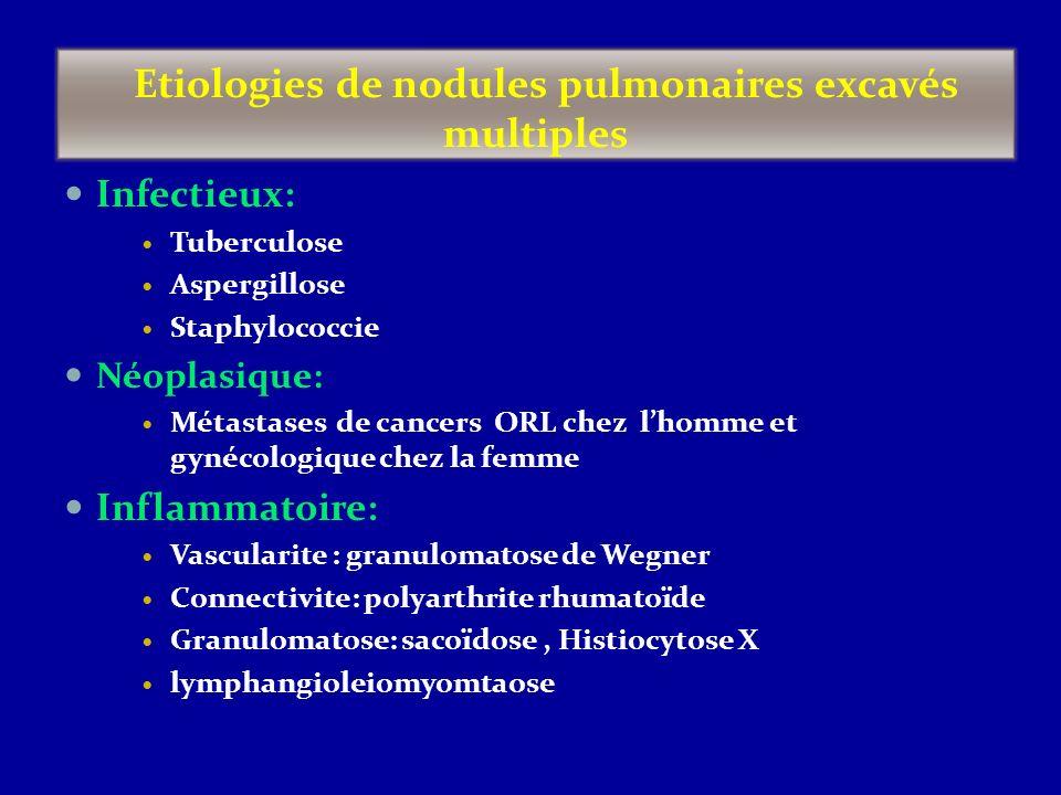 Etiologies de nodules pulmonaires excavés multiples Infectieux: Tuberculose Aspergillose Staphylococcie Néoplasique: Métastases de cancers ORL chez lh