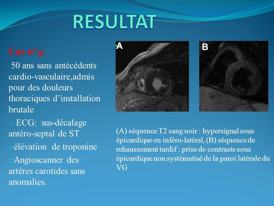 Cas n°4: 50 ans sans antécédents cardio-vasculaire,admis pour des douleurs thoraciques dinstallation brutale o ECG: sus-décalage antéro-septal de ST o