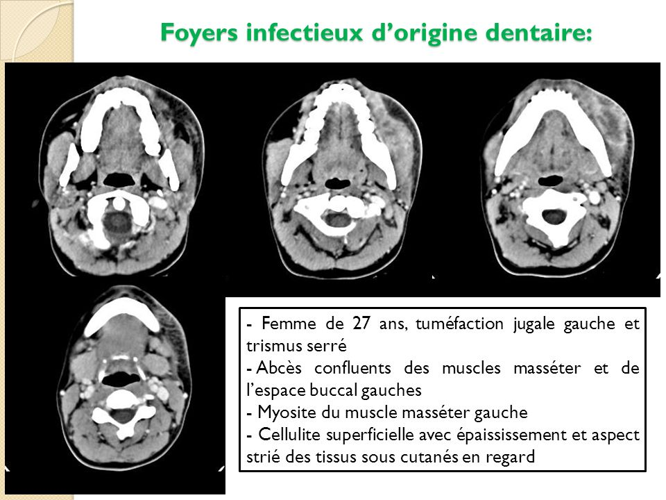 Foyers infectieux dorigine dentaire: - Femme de 27 ans, tuméfaction jugale gauche et trismus serré - Abcès confluents des muscles masséter et de lespa