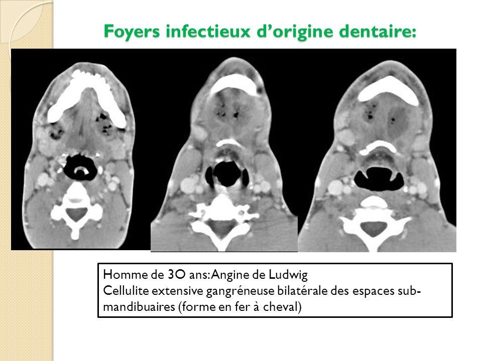 Foyers infectieux dorigine dentaire: Homme de 3O ans: Angine de Ludwig Cellulite extensive gangréneuse bilatérale des espaces sub- mandibuaires (forme