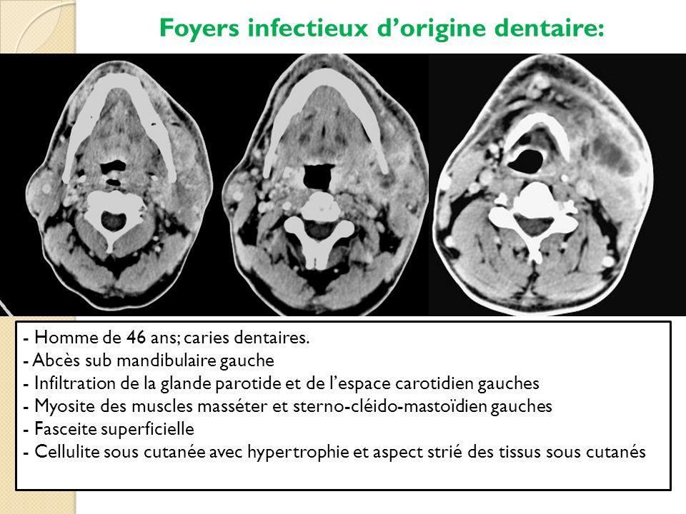 Foyers infectieux dorigine dentaire: - Homme de 46 ans; caries dentaires. - Abcès sub mandibulaire gauche - Infiltration de la glande parotide et de l