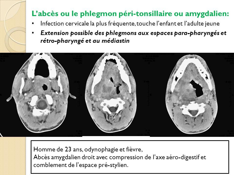 Homme de 23 ans, odynophagie et fièvre, Abcès amygdalien droit avec compression de laxe aéro-digestif et comblement de lespace pré-stylien. Labcès ou