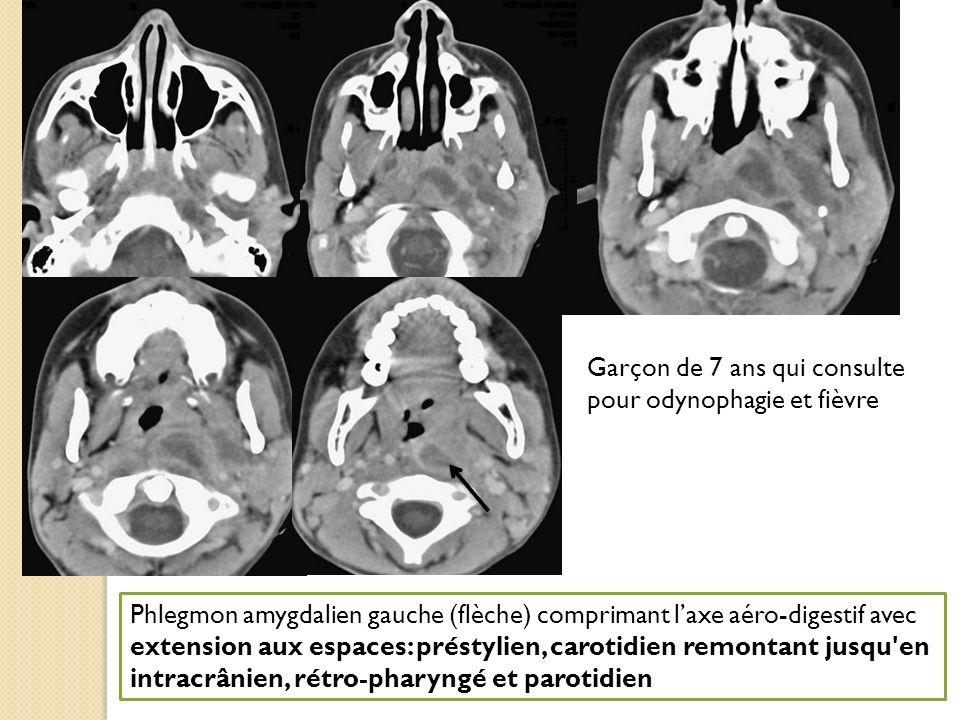 Garçon de 7 ans qui consulte pour odynophagie et fièvre Phlegmon amygdalien gauche (flèche) comprimant laxe aéro-digestif avec extension aux espaces: