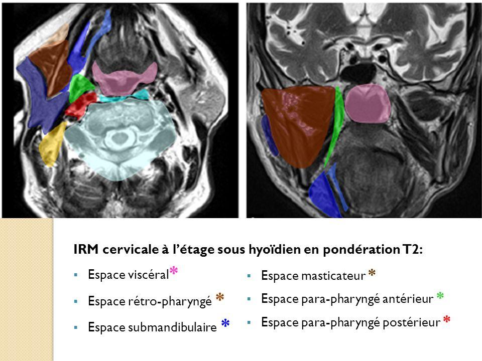 IRM cervicale à létage sous hyoïdien en pondération T2: Espace viscéral * Espace rétro-pharyngé * Espace submandibulaire * Espace masticateur * Espace