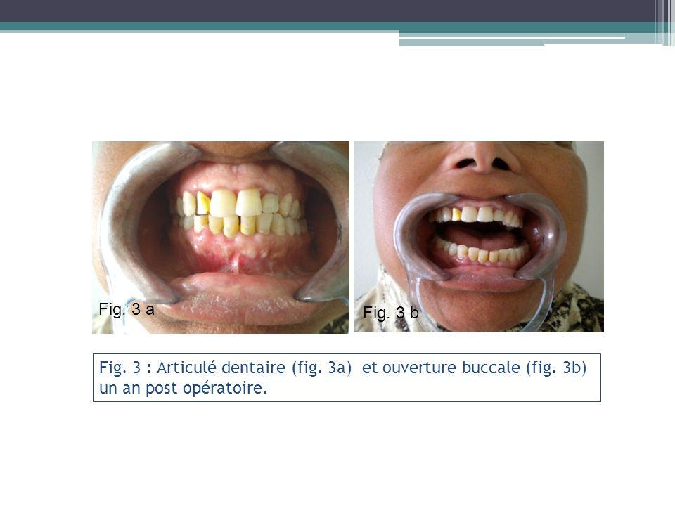 Fig. 3 : Articulé dentaire (fig. 3a) et ouverture buccale (fig. 3b) un an post opératoire. Fig. 3 a Fig. 3 b