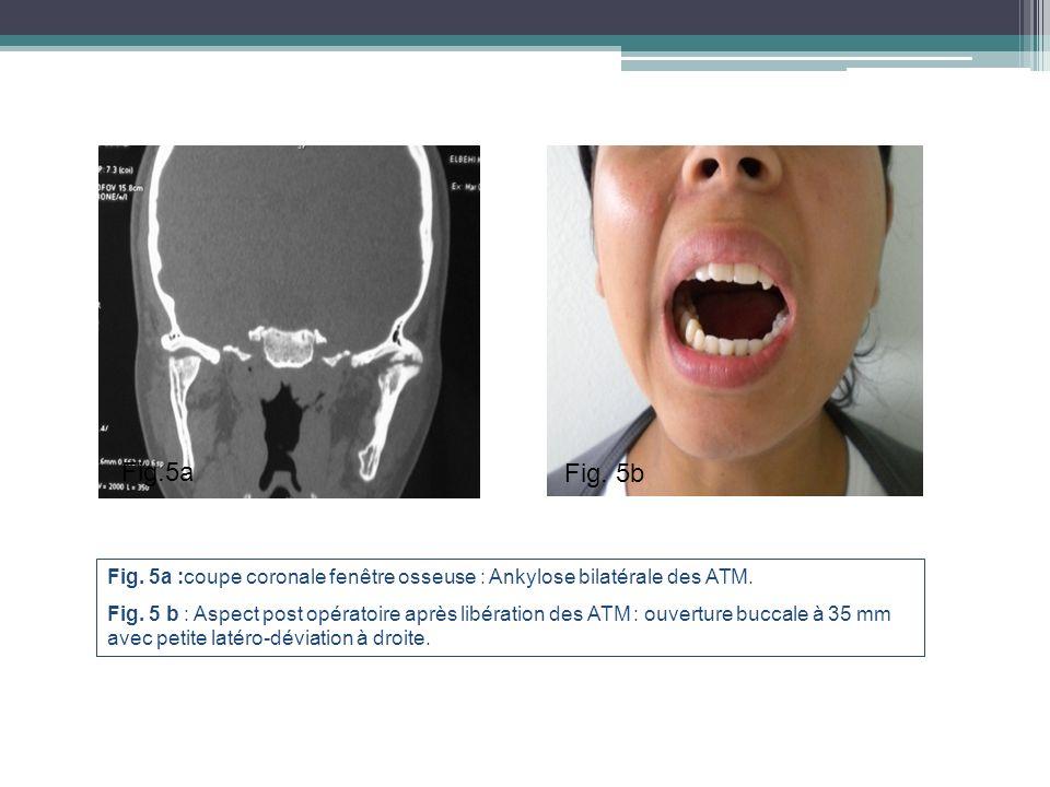 Fig. 5a :coupe coronale fenêtre osseuse : Ankylose bilatérale des ATM. Fig. 5 b : Aspect post opératoire après libération des ATM : ouverture buccale