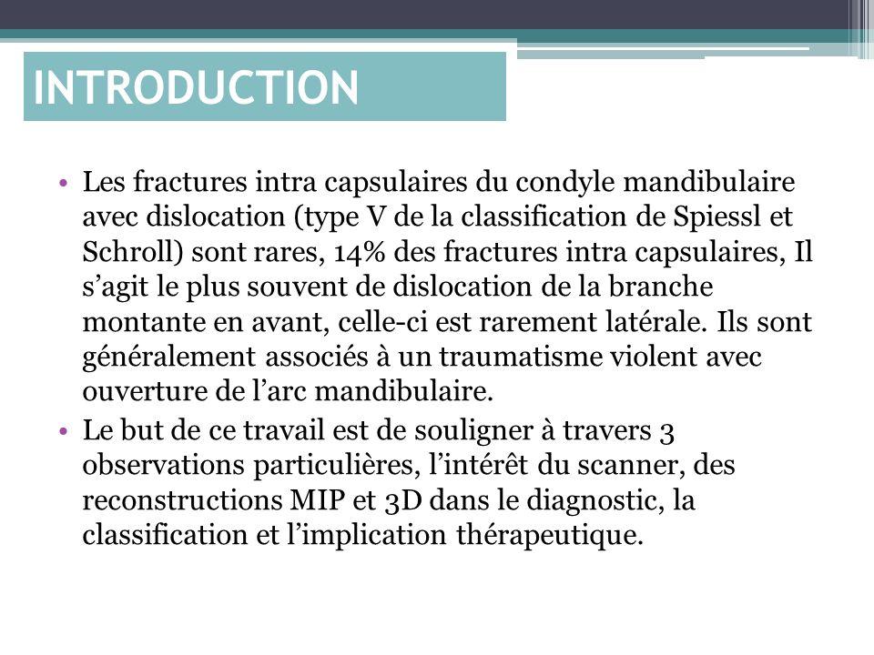 INTRODUCTION Les fractures intra capsulaires du condyle mandibulaire avec dislocation (type V de la classification de Spiessl et Schroll) sont rares,