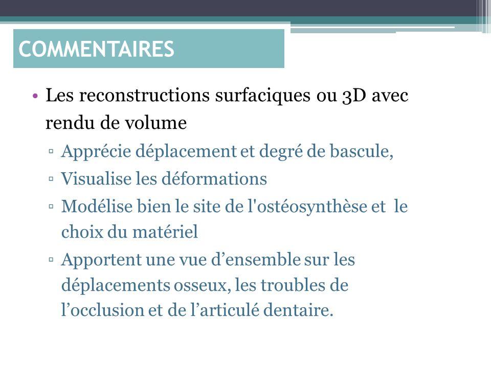 Les reconstructions surfaciques ou 3D avec rendu de volume Apprécie déplacement et degré de bascule, Visualise les déformations Modélise bien le site