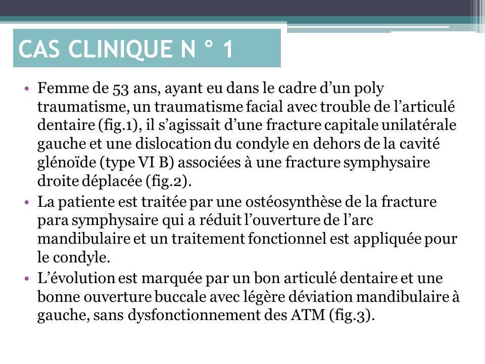 Femme de 53 ans, ayant eu dans le cadre dun poly traumatisme, un traumatisme facial avec trouble de larticulé dentaire (fig.1), il sagissait dune frac