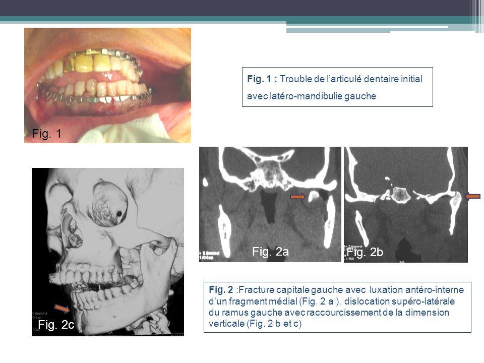 Fig. 1 : Trouble de larticulé dentaire initial avec latéro-mandibulie gauche Fig. 2 :Fracture capitale gauche avec luxation antéro-interne dun fragmen