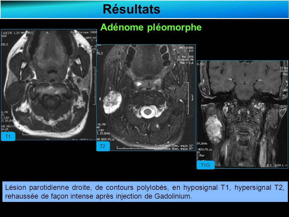 Résultats Adénome pléomorphe T1 T2 T1G Lésion parotidienne droite, de contours polylobés, en hyposignal T1, hypersignal T2, rehaussée de façon intense après injection de Gadolinium.