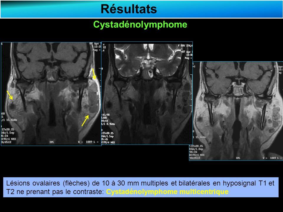 Résultats Cystadénolymphome T1 T1G T2 Lésions ovalaires (flèches) de 10 à 30 mm multiples et bilatérales en hyposignal T1 et T2 ne prenant pas le contraste: Cystadénolymphome multicentrique