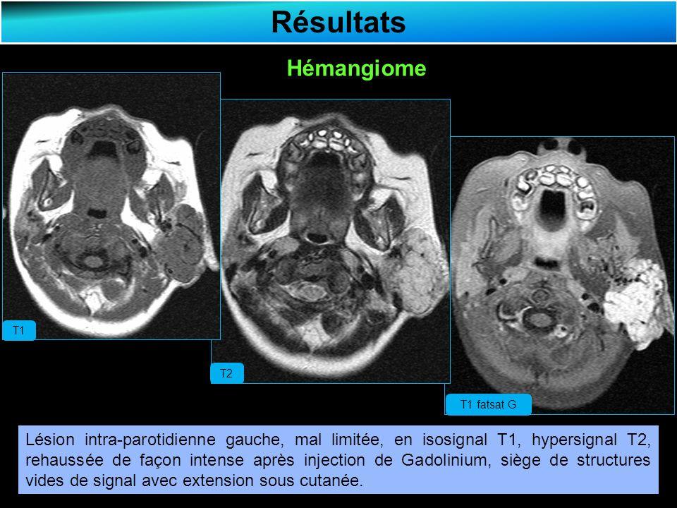 Résultats Hémangiome Lésion intra-parotidienne gauche, mal limitée, en isosignal T1, hypersignal T2, rehaussée de façon intense après injection de Gadolinium, siège de structures vides de signal avec extension sous cutanée.
