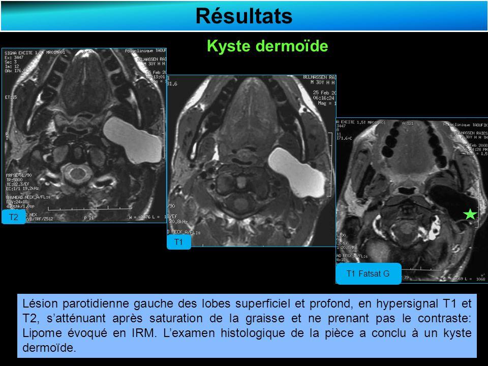 Résultats Kyste dermoïde T2 T1 T1 Fatsat G Lésion parotidienne gauche des lobes superficiel et profond, en hypersignal T1 et T2, satténuant après saturation de la graisse et ne prenant pas le contraste: Lipome évoqué en IRM.