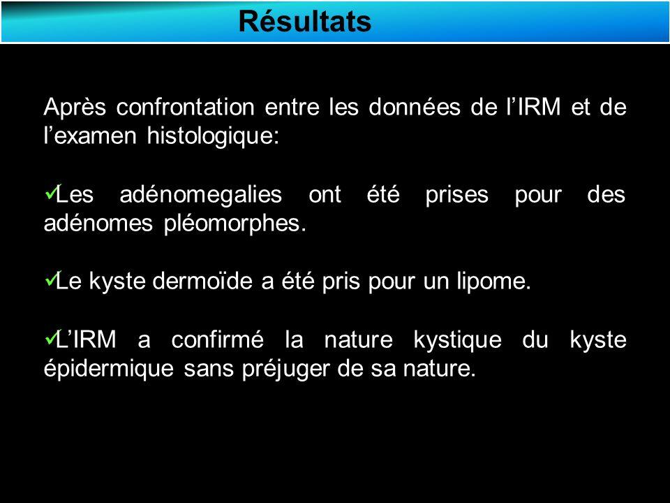 Résultats Après confrontation entre les données de lIRM et de lexamen histologique: Les adénomegalies ont été prises pour des adénomes pléomorphes.
