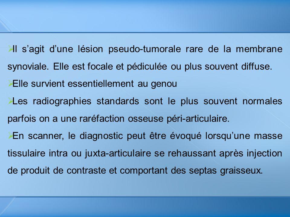 Il sagit dune lésion pseudo-tumorale rare de la membrane synoviale. Elle est focale et pédiculée ou plus souvent diffuse. Elle survient essentiellemen