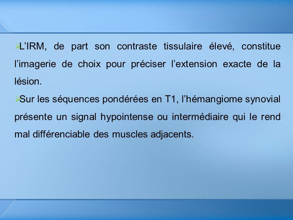 LIRM, de part son contraste tissulaire élevé, constitue limagerie de choix pour préciser lextension exacte de la lésion. Sur les séquences pondérées e