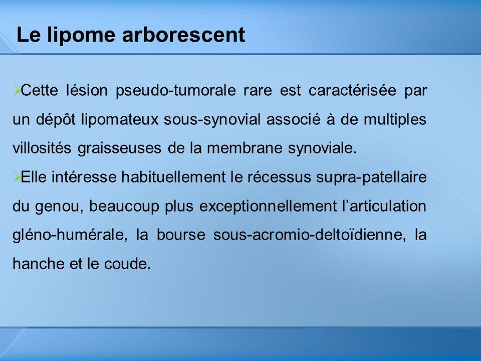 Le lipome arborescent Cette lésion pseudo-tumorale rare est caractérisée par un dépôt lipomateux sous-synovial associé à de multiples villosités grais