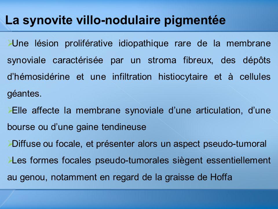 La synovite villo-nodulaire pigmentée Une lésion proliférative idiopathique rare de la membrane synoviale caractérisée par un stroma fibreux, des dépô