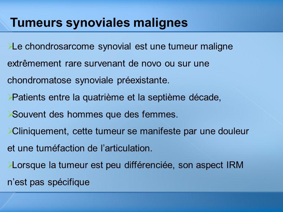 Tumeurs synoviales malignes Le chondrosarcome synovial est une tumeur maligne extrêmement rare survenant de novo ou sur une chondromatose synoviale pr