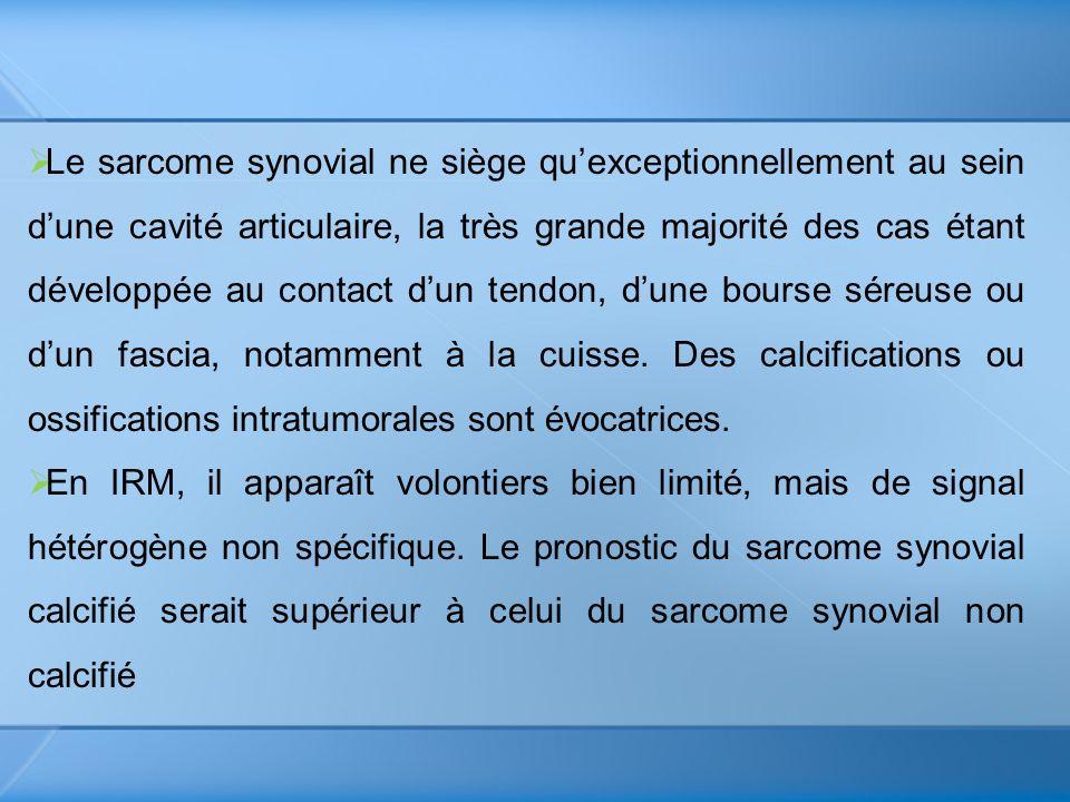 Le sarcome synovial ne siège quexceptionnellement au sein dune cavité articulaire, la très grande majorité des cas étant développée au contact dun ten