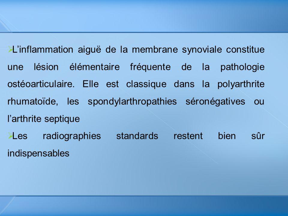 Linflammation aiguë de la membrane synoviale constitue une lésion élémentaire fréquente de la pathologie ostéoarticulaire. Elle est classique dans la
