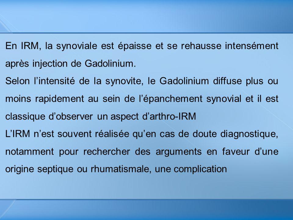 En IRM, la synoviale est épaisse et se rehausse intensément après injection de Gadolinium. Selon lintensité de la synovite, le Gadolinium diffuse plus