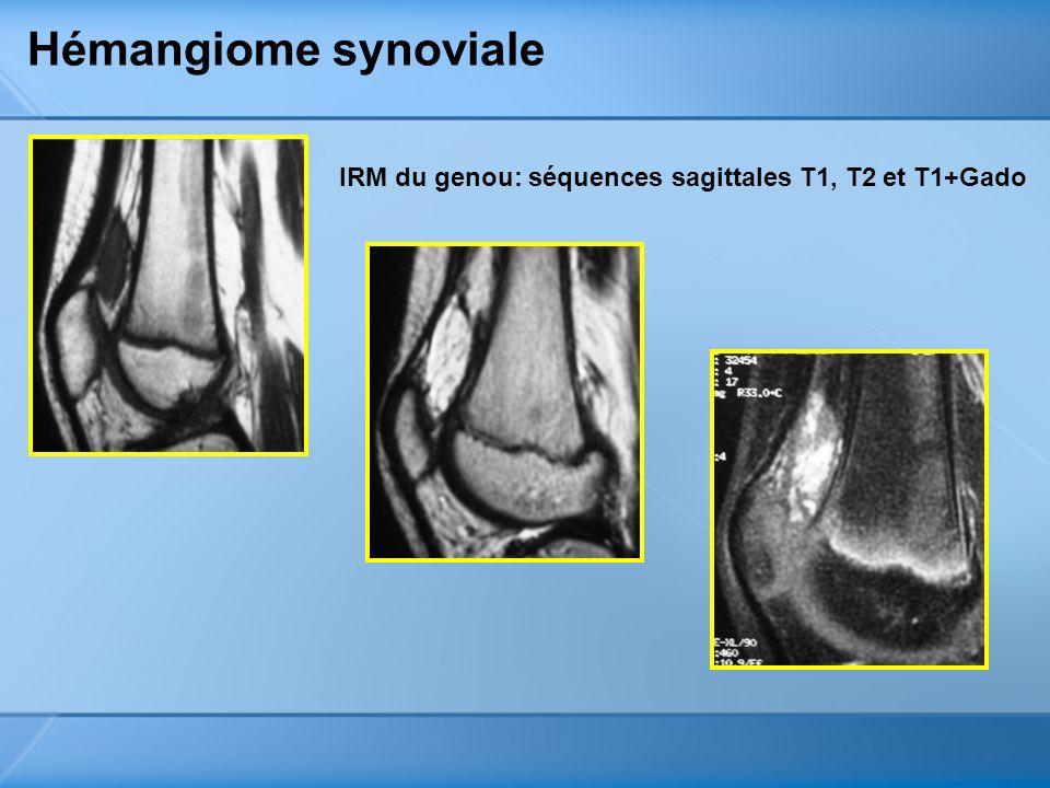 Hémangiome synoviale IRM du genou: séquences sagittales T1, T2 et T1+Gado