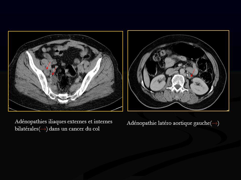 Adénopathies iliaques externes et internes bilatérales( ) dans un cancer du col Adénopathie latéro aortique gauche( )