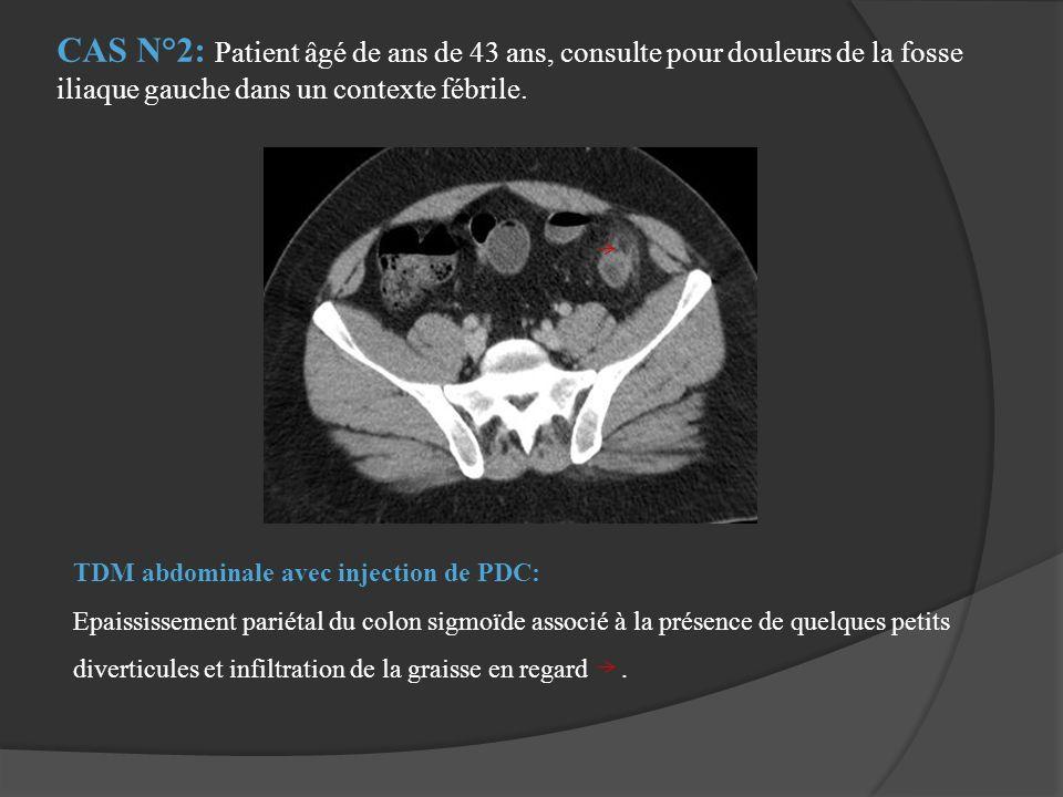 TDM abdominale avec injection de PDC: Epaississement pariétal du colon sigmoïde associé à la présence de quelques petits diverticules et infiltration