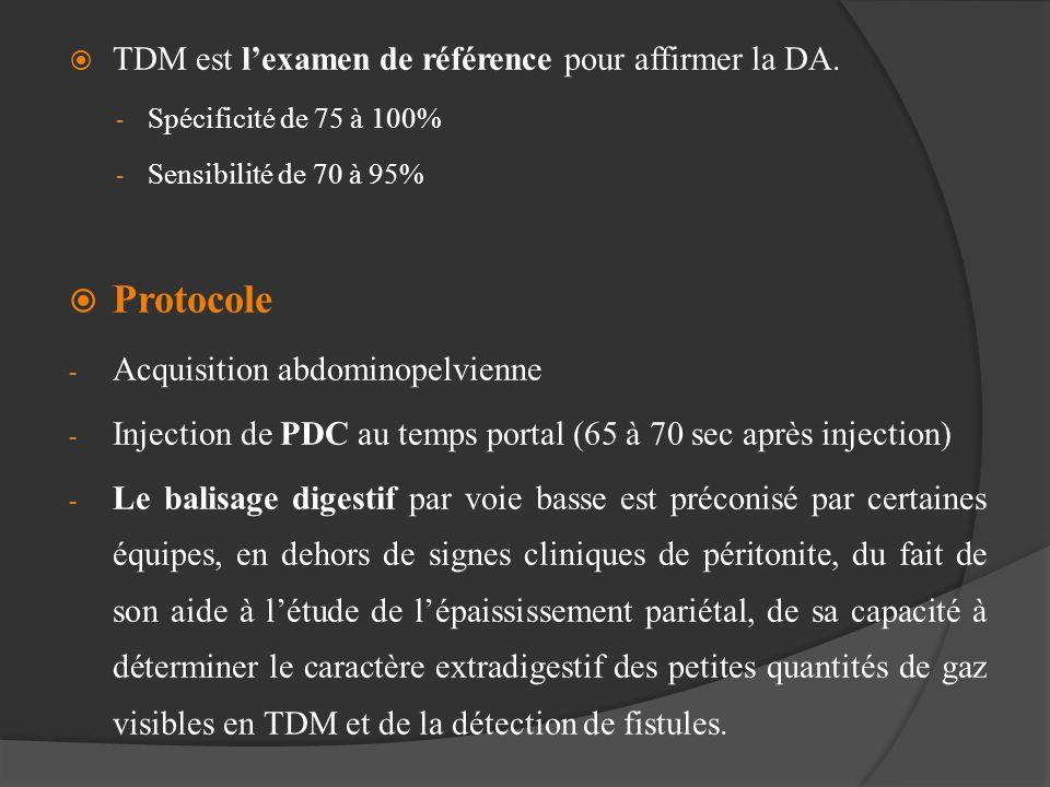TDM est lexamen de référence pour affirmer la DA. - Spécificité de 75 à 100% - Sensibilité de 70 à 95% Protocole - Acquisition abdominopelvienne - Inj