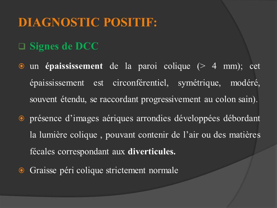 DIAGNOSTIC POSITIF: Signes de DCC un épaississement de la paroi colique (> 4 mm); cet épaississement est circonférentiel, symétrique, modéré, souvent