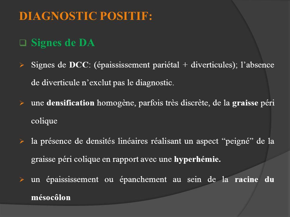 DIAGNOSTIC POSITIF: Signes de DA Signes de DCC: (épaississement pariétal + diverticules); labsence de diverticule nexclut pas le diagnostic. une densi