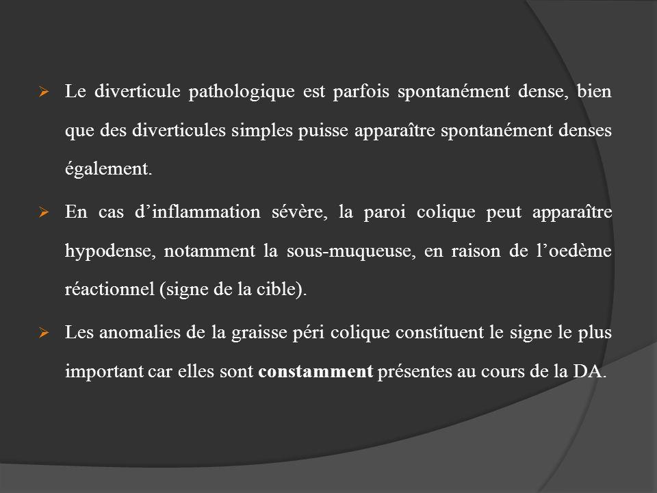 Le diverticule pathologique est parfois spontanément dense, bien que des diverticules simples puisse apparaître spontanément denses également. En cas