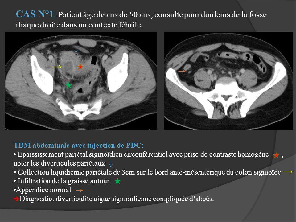 TDM abdominale avec injection de PDC: Epaississement pariétal sigmoïdien circonférentiel avec prise de contraste homogène, noter les diverticules pari