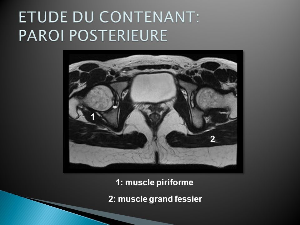 2: muscle grand fessier 1: muscle piriforme 1 2