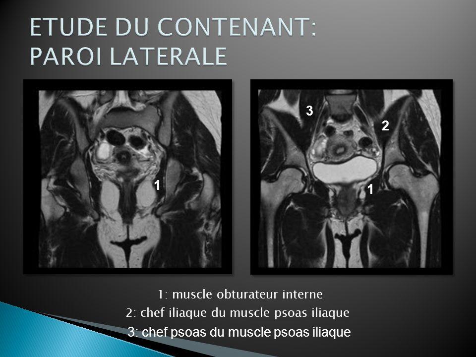 1: muscle droit de labdomen 2: muscle sartorius (m.couturier) 3: muscle psoas iliaque (m.