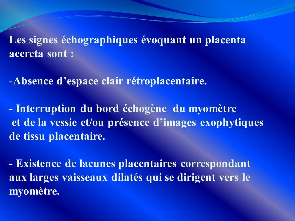 Les signes échographiques évoquant un placenta accreta sont : -Absence despace clair rétroplacentaire. - Interruption du bord échogène du myomètre et
