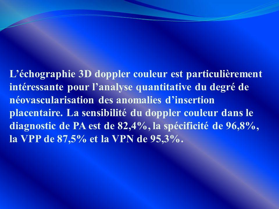 Léchographie 3D doppler couleur est particulièrement intéressante pour lanalyse quantitative du degré de néovascularisation des anomalies dinsertion p