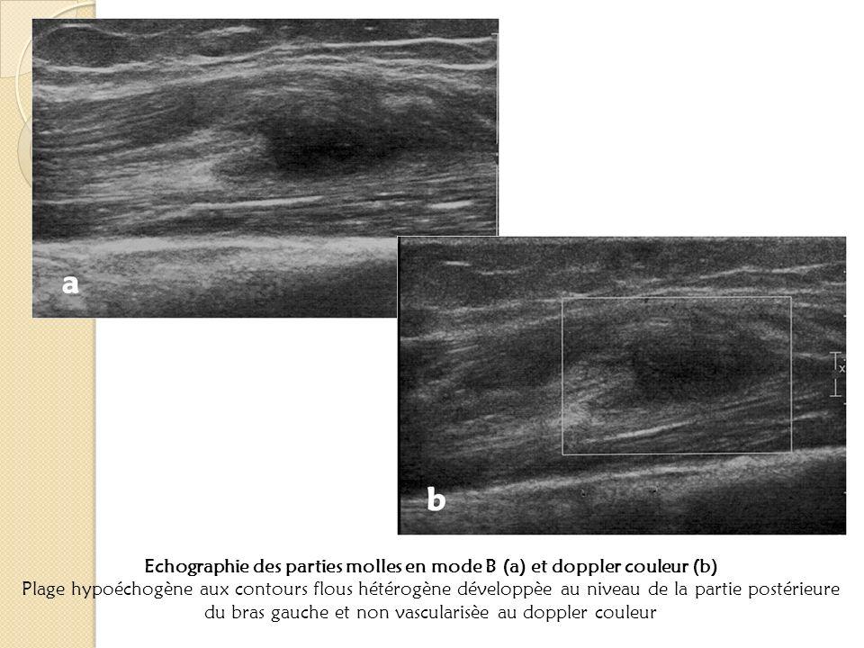 Echographie des parties molles en mode B (a) et doppler couleur (b) Plage hypoéchogène aux contours flous hétérogène développèe au niveau de la partie