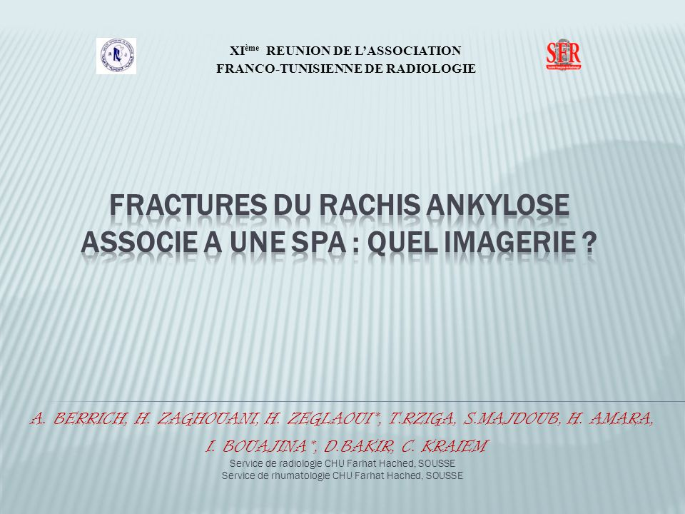 Les fractures transversales du rachis sont une complication bien connue de la spondylarthrite ankylosante.