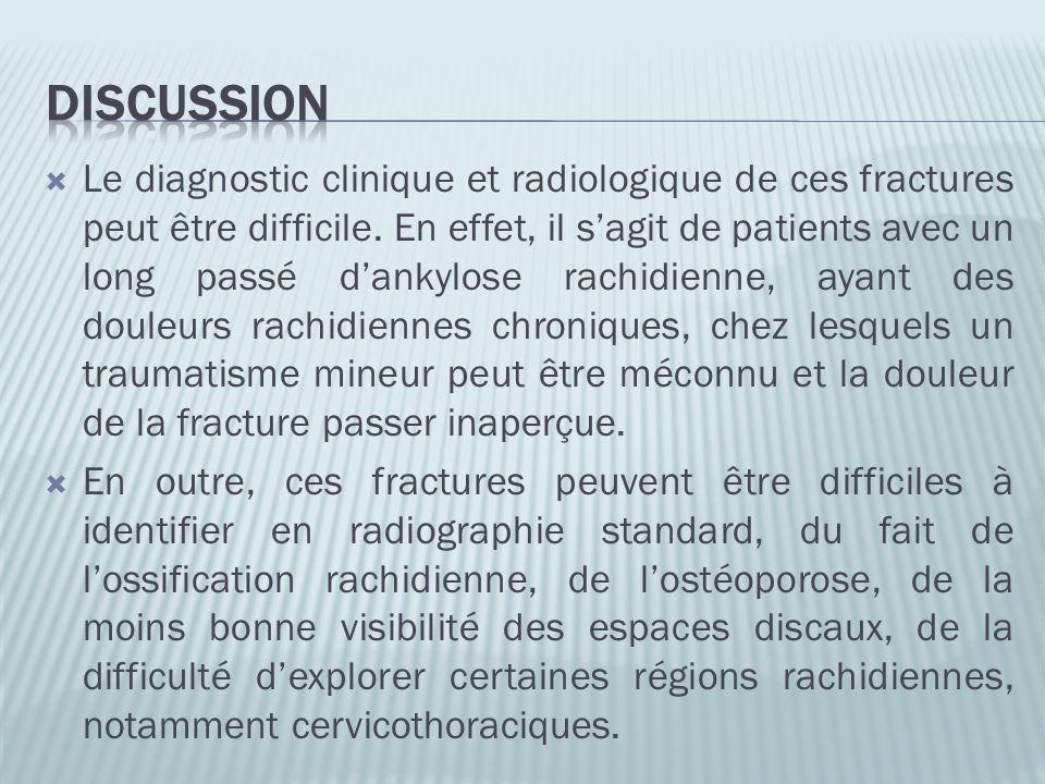 Le diagnostic clinique et radiologique de ces fractures peut être difficile. En effet, il sagit de patients avec un long passé dankylose rachidienne,