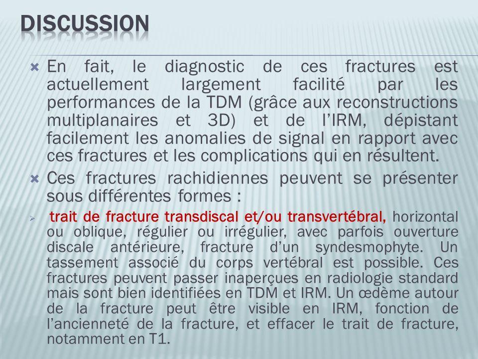 En fait, le diagnostic de ces fractures est actuellement largement facilité par les performances de la TDM (grâce aux reconstructions multiplanaires e