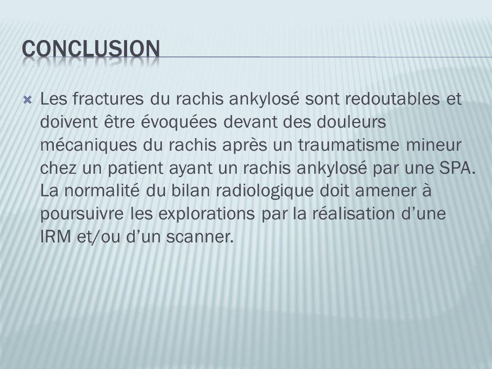 Les fractures du rachis ankylosé sont redoutables et doivent être évoquées devant des douleurs mécaniques du rachis après un traumatisme mineur chez u