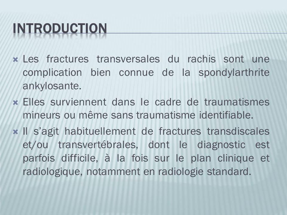 Les fractures transversales du rachis sont une complication bien connue de la spondylarthrite ankylosante. Elles surviennent dans le cadre de traumati