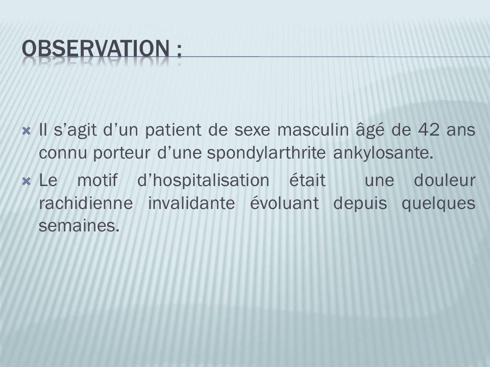 Il sagit dun patient de sexe masculin âgé de 42 ans connu porteur dune spondylarthrite ankylosante. Le motif dhospitalisation était une douleur rachid