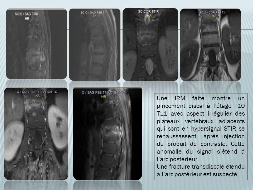 Une IRM faite montre un pincement discal à létage T10 T11 avec aspect irrégulier des plateaux vertébraux adjacents qui sont en hypersignal STIR se reh