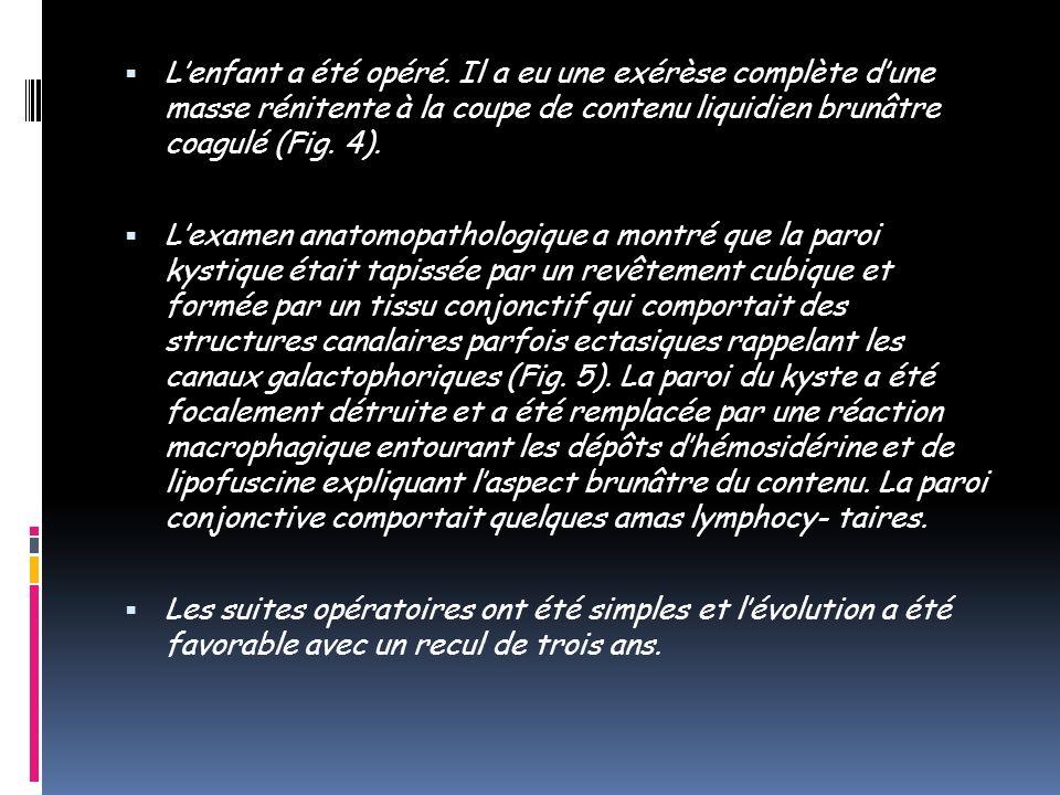 Lenfant a été opéré. Il a eu une exérèse complète dune masse rénitente à la coupe de contenu liquidien brunâtre coagulé (Fig. 4). Lexamen anatomopatho